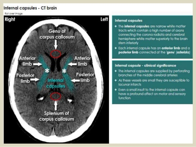 Presentation1pptx Radiological Anatomy Of The Brain