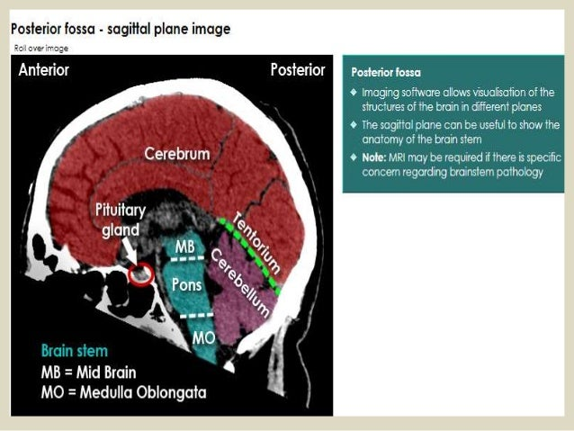 Presentation1 pptx, radiological anatomy of the brain