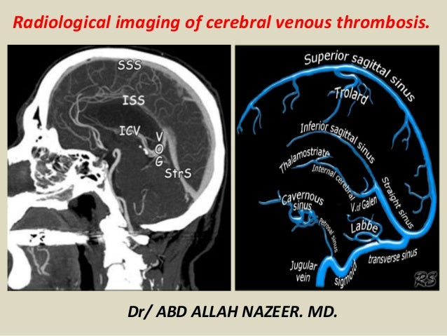 Presentation1pptx Radiological Imaging Of Cerebral Venous Thrombosi