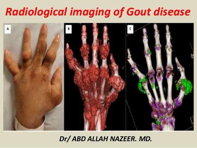 Dr/ ABD ALLAH NAZEER. MD. Radiological imaging of Gout disease