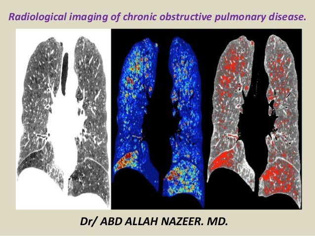 Radiological imaging of chronic obstructive pulmonary disease. Dr/ ABD ALLAH NAZEER. MD.