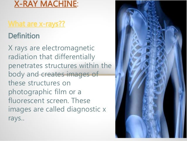 x-ray machine, Human Body