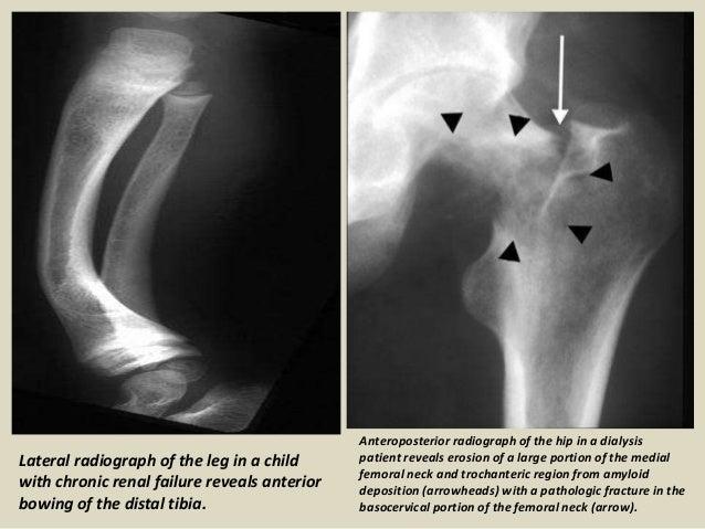Presentation1 pptx, radiological imaging of metabolic bone