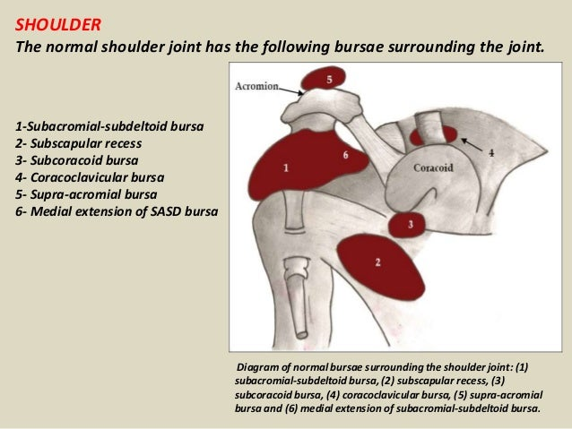 Presentation1pptx Radiological Imaging Of Bursae