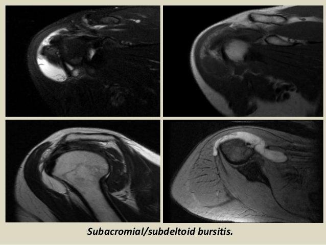 Presentation1.pptx, radiological imaging of bursae.