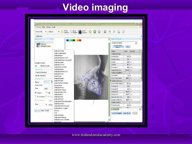 Video imaging www.indiandentalacademy.comwww.indiandentalacademy.com