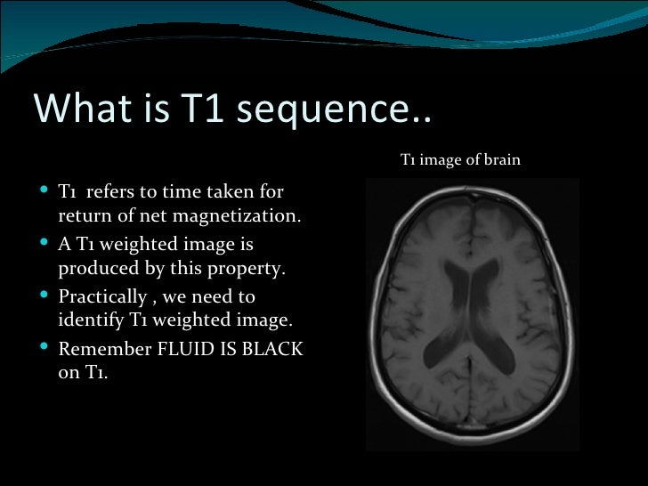 BASICS OF MRI