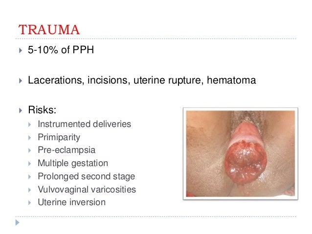Post Partum Hemorrhage Pph