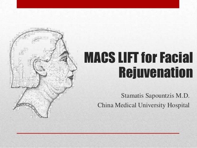 MACS LIFT for Facial     Rejuvenation         Stamatis Sapountzis M.D.  China Medical University Hospital