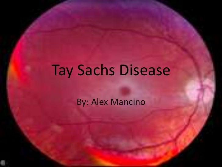 Tay Sachs Disease   By: Alex Mancino