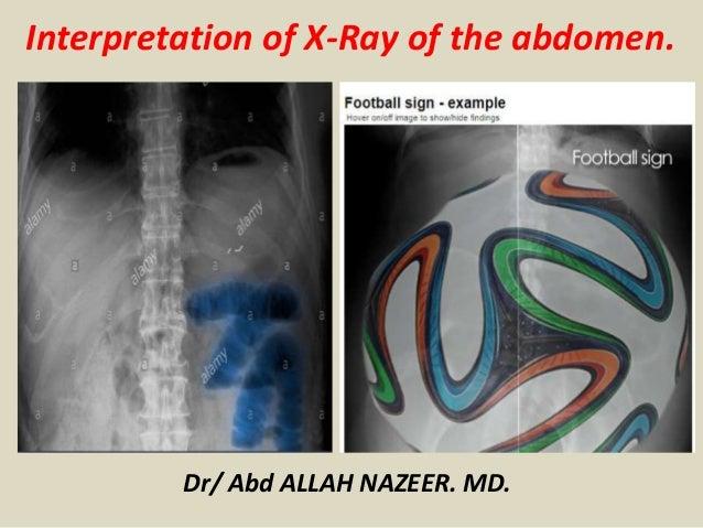 Dr/ Abd ALLAH NAZEER. MD. Interpretation of X-Ray of the abdomen.