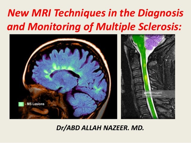 New MRI Techniques in the Diagnosis and Monitoring of Multiple Sclerosis: Dr/ABD ALLAH NAZEER. MD.