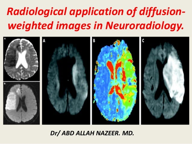 Radiological application of diffusion- weighted images in Neuroradiology. Dr/ ABD ALLAH NAZEER. MD.