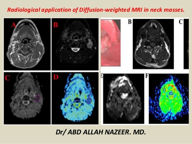 Radiological application of Diffusion-weighted MRI in neck masses. Dr/ ABD ALLAH NAZEER. MD.