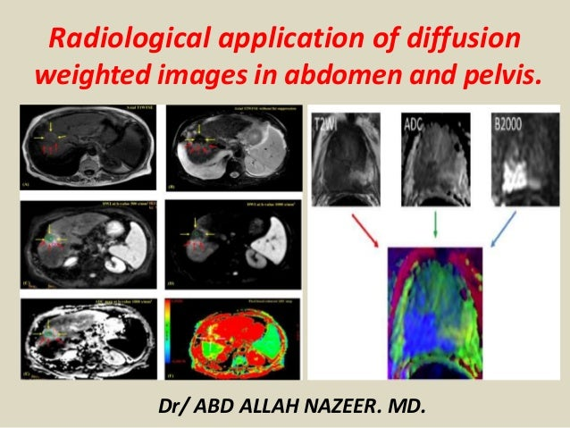 Dr/ ABD ALLAH NAZEER. MD. Radiological application of diffusion weighted images in abdomen and pelvis.
