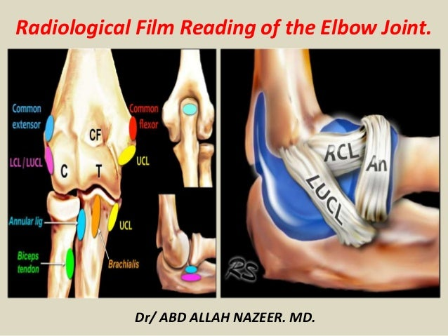 Dr/ ABD ALLAH NAZEER. MD. Radiological Film Reading of the Elbow Joint.