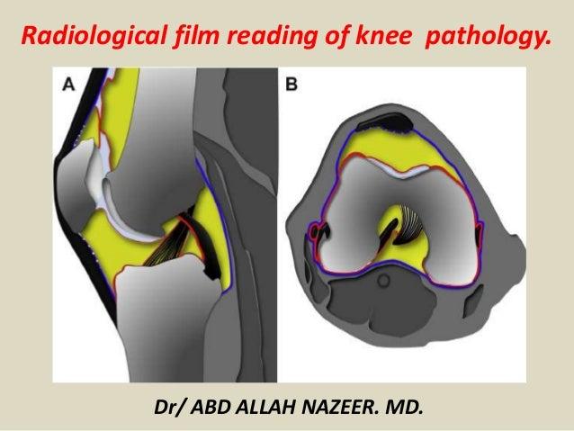 Presentation1 radiological film reading of knee joint radiological film reading of knee pathology dr abd allah nazeer md ccuart Choice Image