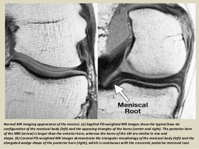 Presentation1 radiological film reading of knee joint 17 ccuart Choice Image