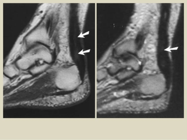 Presentation1, radiological film reading of the ankle joint