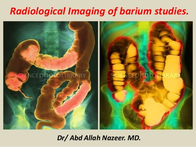 Dr/ Abd Allah Nazeer. MD. Radiological Imaging of barium studies.