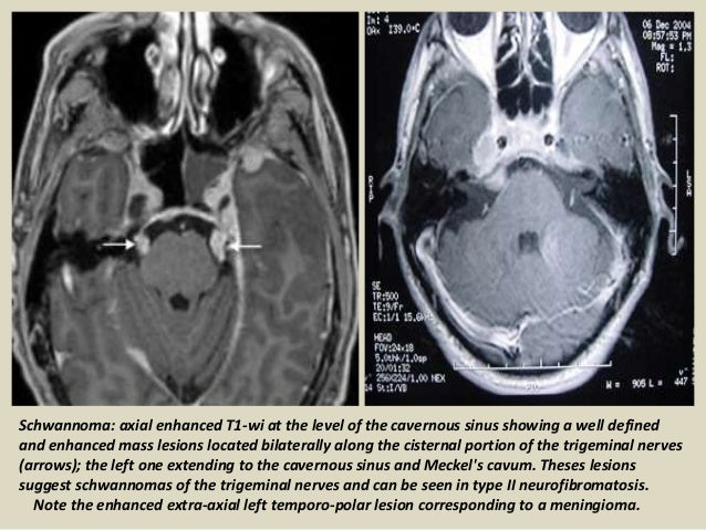 Presentation1 Radiological Imaging Of Cavernous Sinus Lesions