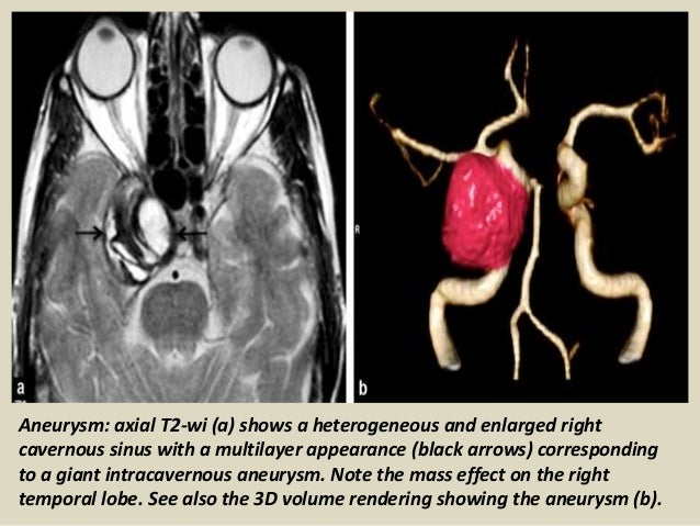 Presentation1 Radiological Imaging Of Cavernous Sinus Lesions