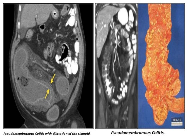 Presentation1 radiological imaging of colitis for Colonic mural thickening