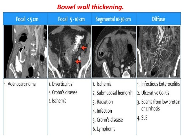 Presentation1 radiological imaging of colitis for Diffuse mural thickening