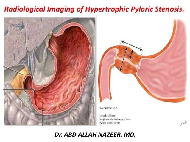 Presentation1, radiological imaging of hypertrophic pyloric stenosis.