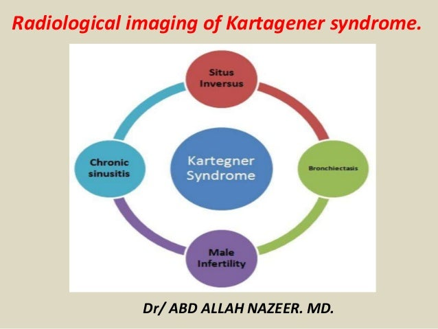 Presentation1 Radiological Imaging Of Karrtegner S Syndrome