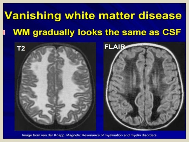 Vanishing white matter disease mri radiology