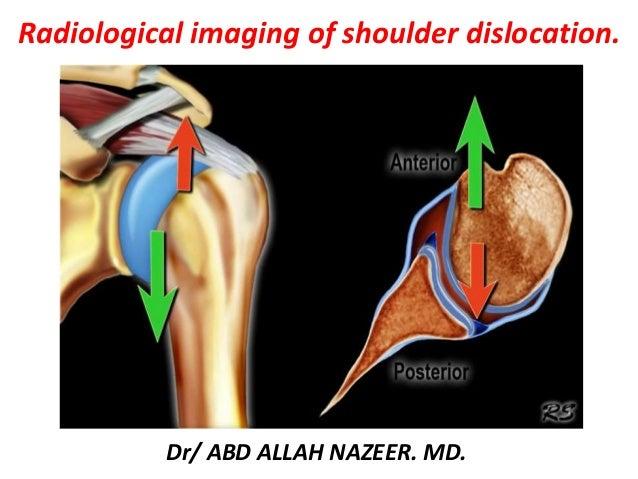 Dr/ ABD ALLAH NAZEER. MD. Radiological imaging of shoulder dislocation.