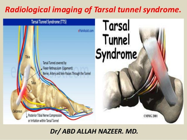 Presentation1 Radiological Imaging Of Tarsal Tunnel Syndrome