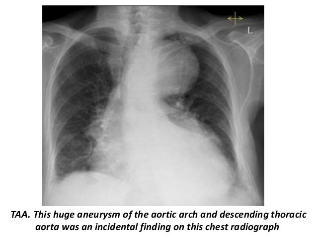 Presentation1 Radiological Imaging Of Thoracic Aortic Aneurysm