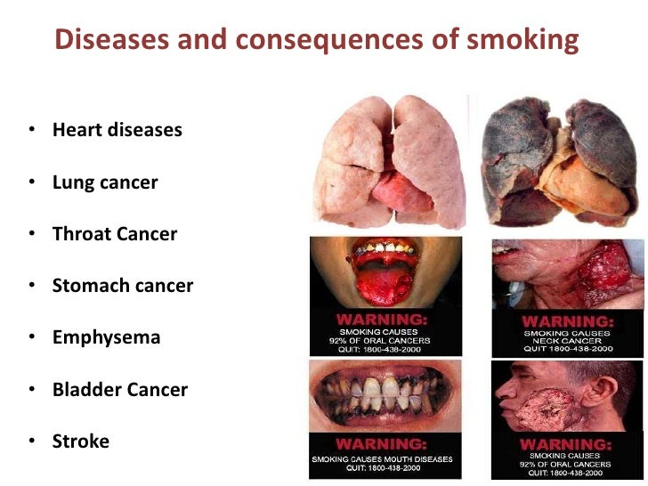 consequences of smoking Cigarette smoking harms nearly every organ in the body, and smoking is the  leading preventable cause of premature death in the united states.