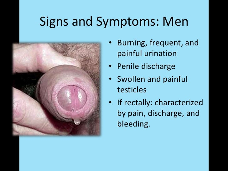 Anal chlamydia symptoms