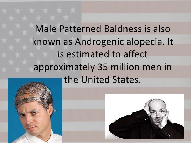 Male Patterned Baldness is alsoknown as Androgenic alopecia. It     is estimated to affectapproximately 35 million men in ...