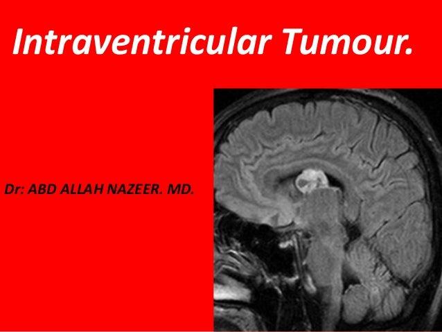 Intraventricular Tumour.  Dr: ABD ALLAH NAZEER. MD.