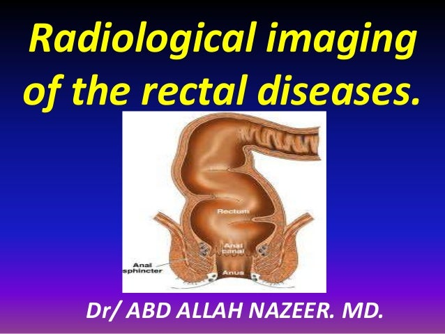 Dr/ ABD ALLAH NAZEER. MD. Radiological imaging of the rectal diseases.