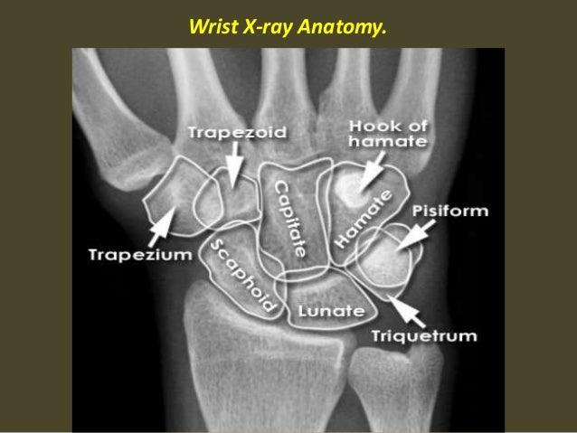 Presentation2pptx Wrist Joint