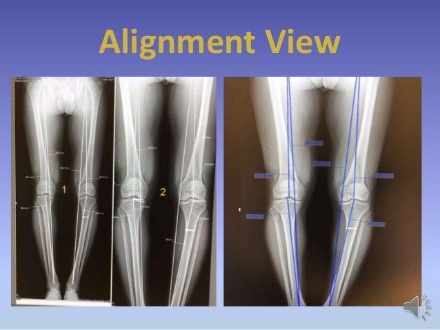 نتیجه تصویری برای رادیوگرافی alignment view
