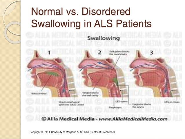 normal vs  disordered swallowing