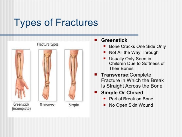 presentation2 fractures, Human Body