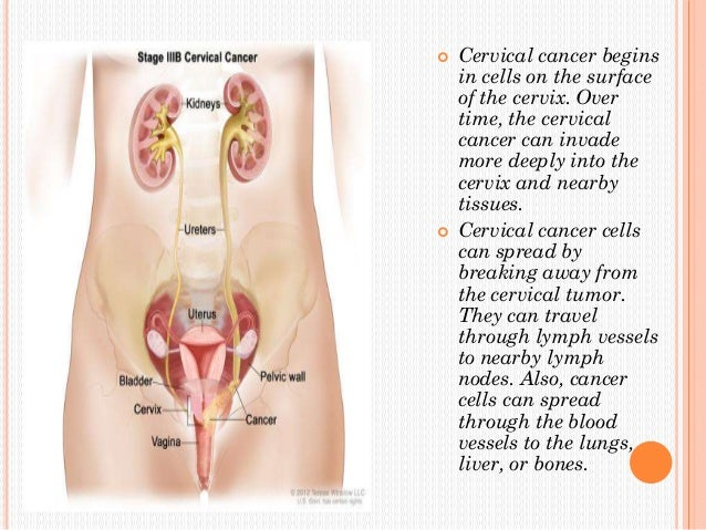 essays on breast cancer screening The use of screening mammography is still under debate within the medical community the aim of this study is to define a balance sheet of benefits (breast cancer mortality reduction) and.