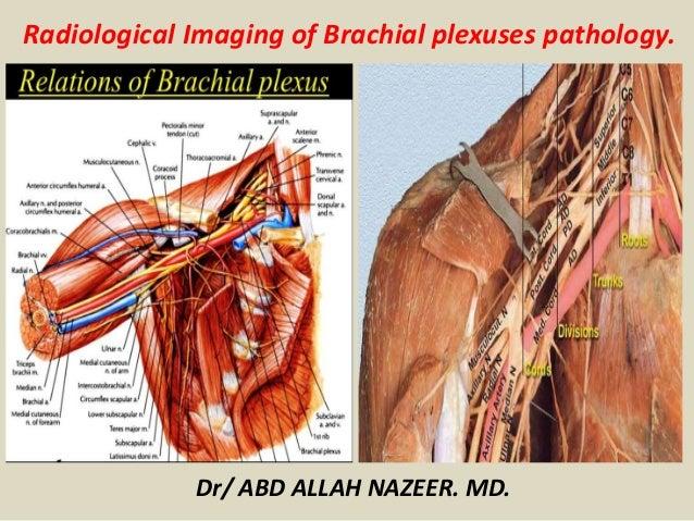 Presentation2, radiological imaging of brachial plexus pathology.