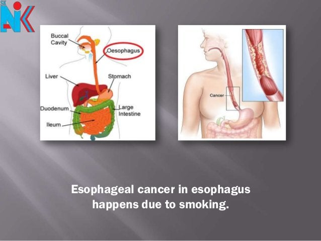 Esophageal cancer in esophagus   happens due to smoking.