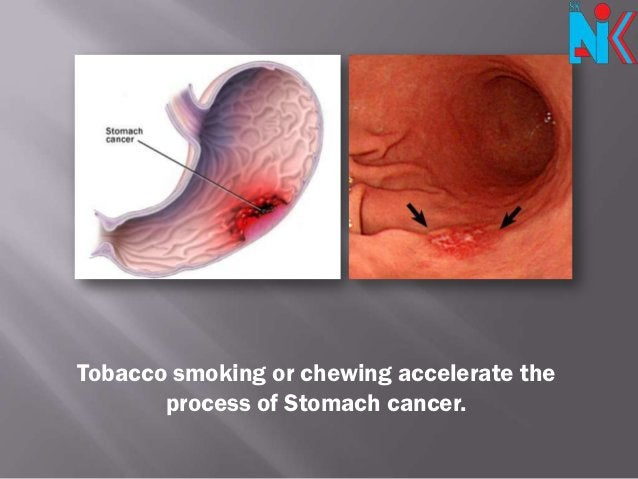 Tobacco smoking or chewing accelerate the       process of Stomach cancer.