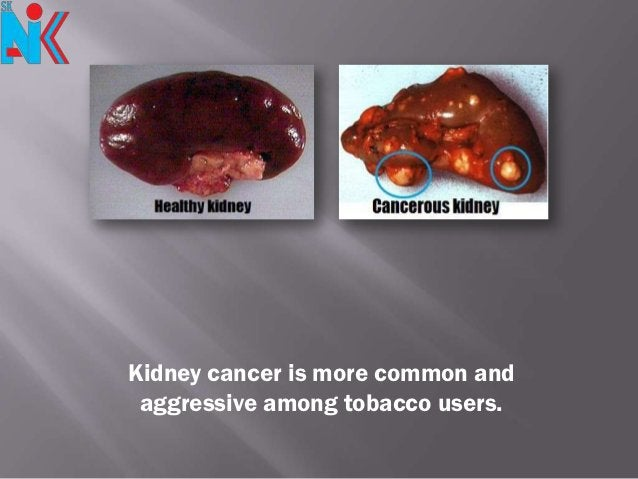 Kidney cancer is more common and aggressive among tobacco users.