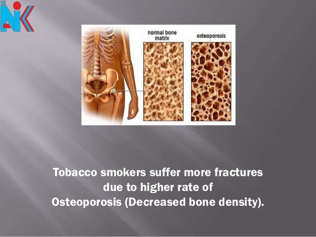 Tobacco smokers suffer more fractures        due to higher rate ofOsteoporosis (Decreased bone density).