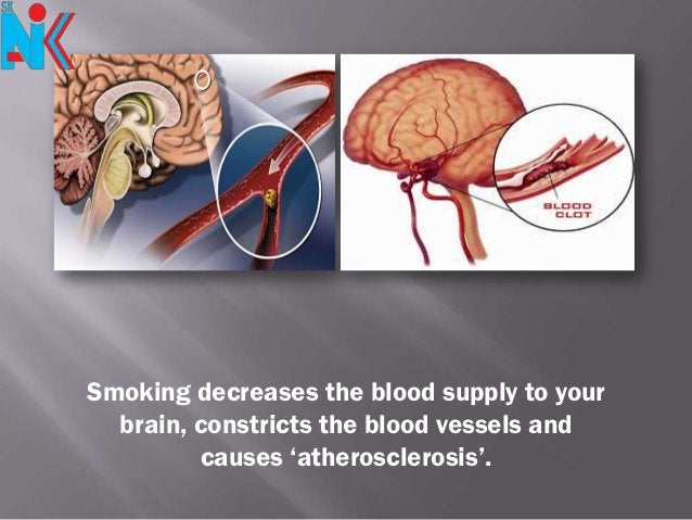 Smoking decreases the blood supply to your  brain, constricts the blood vessels and         causes 'atherosclerosis'.